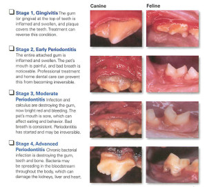 Dental PerioDisease1A